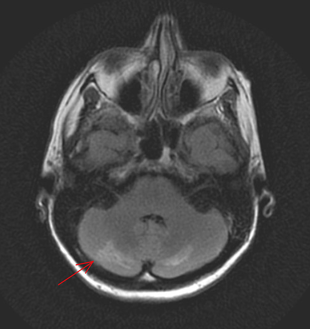 Magnetic-resonance-imaging-(MRI)-of-the-brain-without-contrast-showing-focal-cerebellar-enhancement.