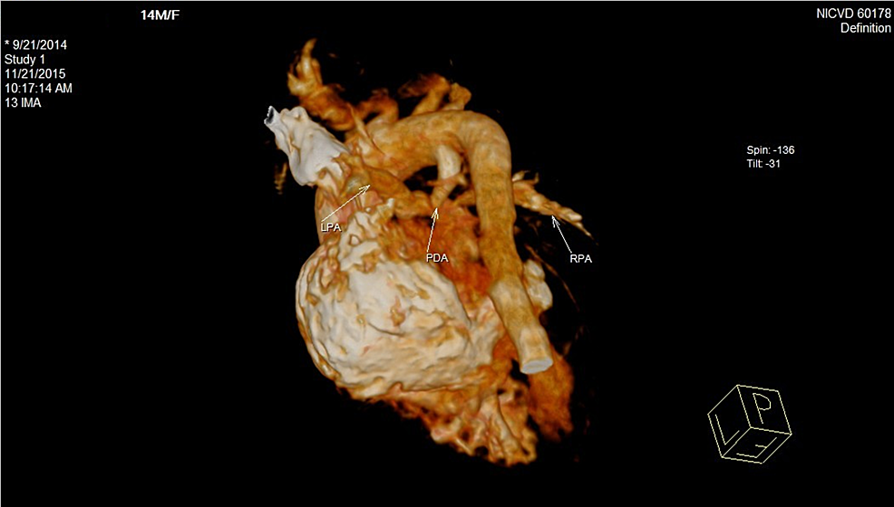 Cardiac-CT-scan-showing-patent-ductus-arteriosus-in-the-patient