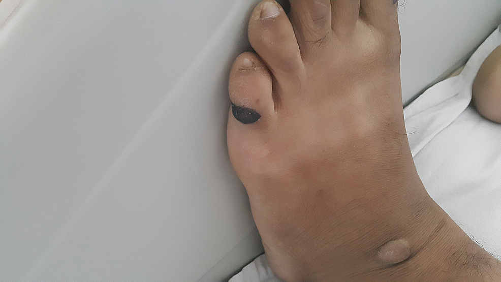 Linear-Grade-II-pressure-ulcers-on-the-lateral-aspect-of-left-little-toe.