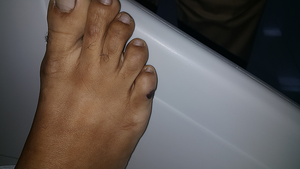 Linear-Grade-II-pressure-ulcers-on-the-lateral-aspect-of-the-right-little-toe.