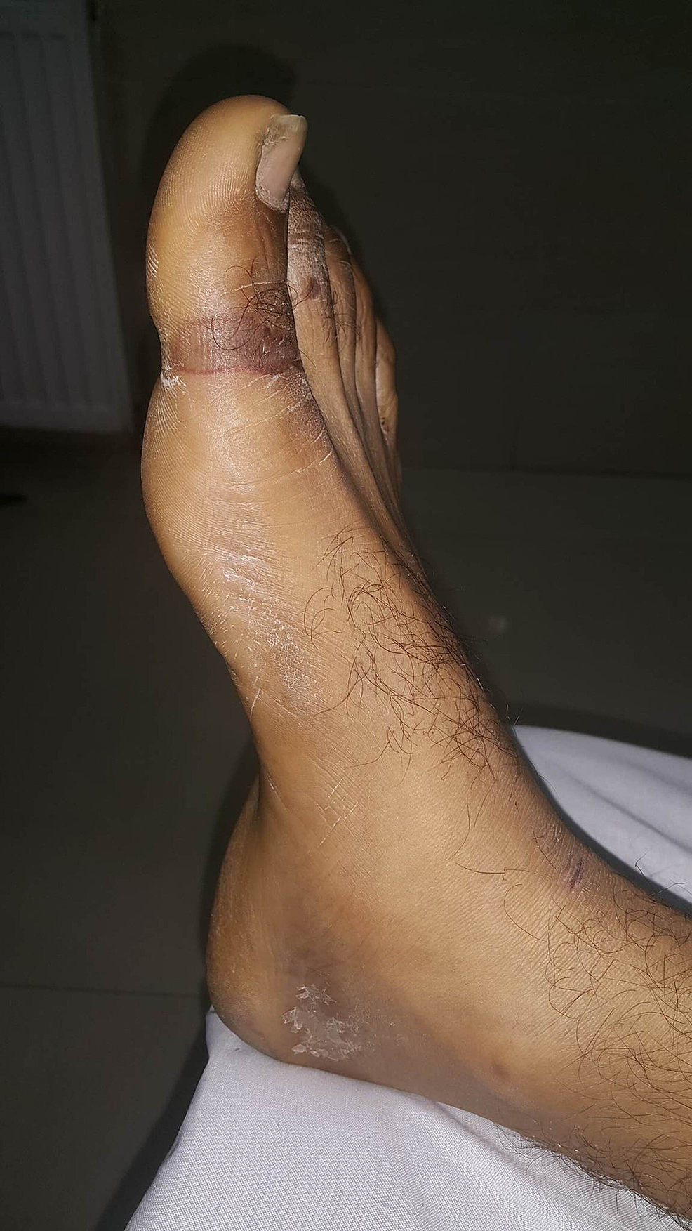 Linear-pressure-ulcer-(Grade-II)-on-the-medial-aspect-of-right-big-toe.