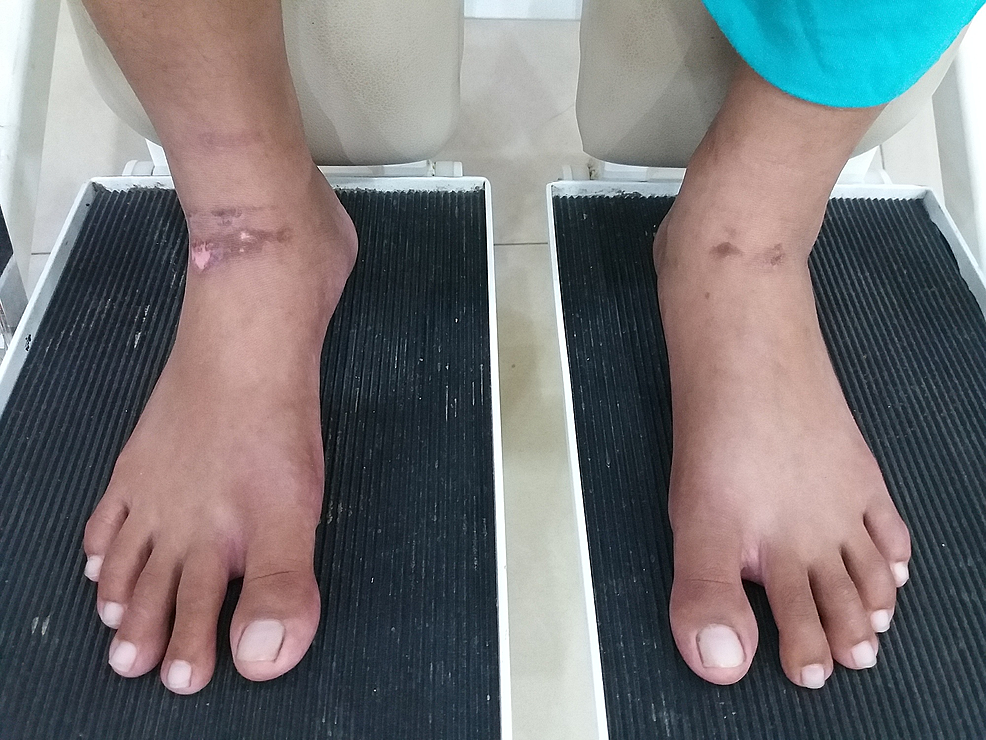 Linear-pressure-ulcer-(Grade-II)-on-the-anterior-aspect-of-both-ankles.