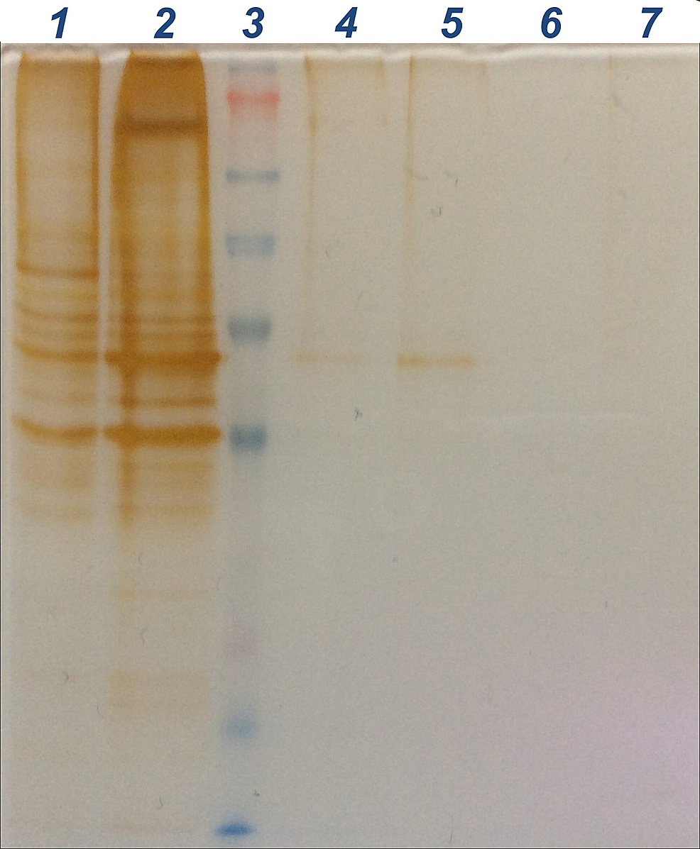 SDS-PAGE-gel-electrophoresis
