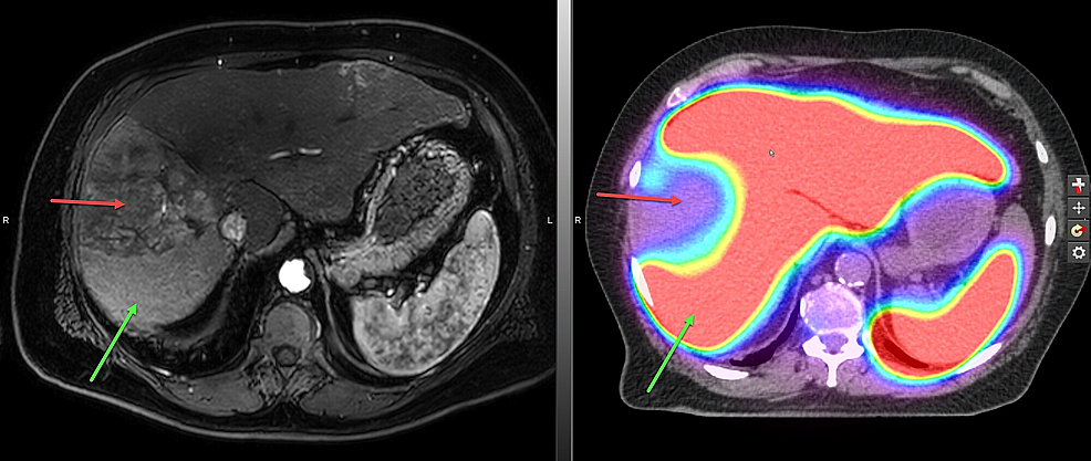 The-treatment-planning-sulfur-colloid-single-photon-emission-computed-tomography-(SPECT/CT)-scan.