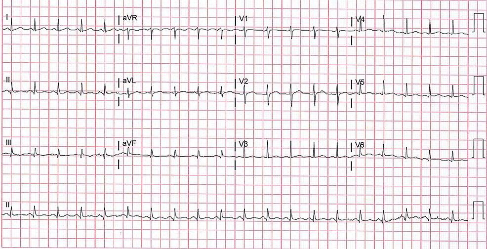 Electrocardiogram-revealed-sinus-tachycardia-with-heart-rate-of-120-with-no-significant-ST-and-T-wave-changes.