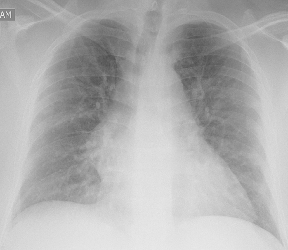Chest-X-ray-revealed-diffuse-bilateral-infiltrates,-consistent-of-COVID-19-pictures
