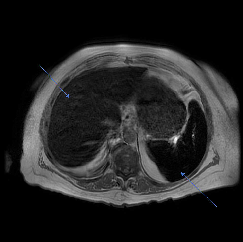 MRI-of-the-abdomen-showing-iron-overload-in-the-liver-and-spleen.-The-calculated-iron-concentration-in-the-liver-measured-148-µmol/g-(normal-iron-concentration-in-the-liver-is-less-than-36-µmol/g).