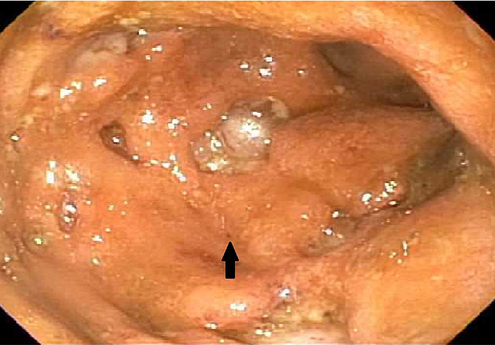Descending-colon