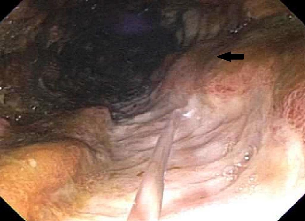 Large-ulcer-in-descending-colon-(arrow)