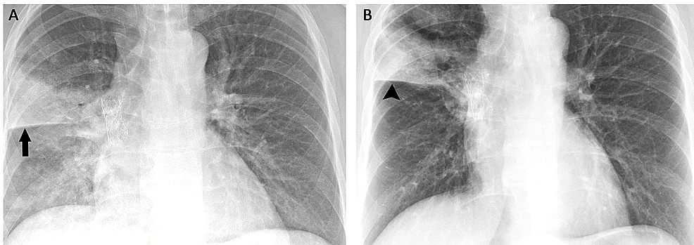 (A)-Chest-radiograph-demonstrating-the-right-upper-lobe-pneumonia-(arrow)-and-(B)-persistent-right-upper-lobe-opacity-(arrowhead)-following-treatment-of-the-pneumonia.