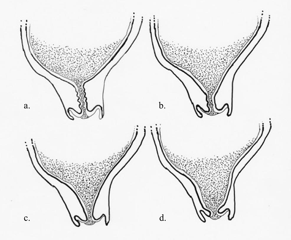 Cervical-progression-in-pregnancy.