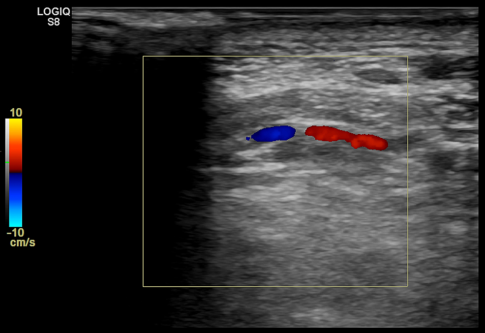 Duplex-ultrasound-image-from-the-left-lateral-neck-demonstrates-the-left-vertebral-artery-near-the-C2-vertebra.