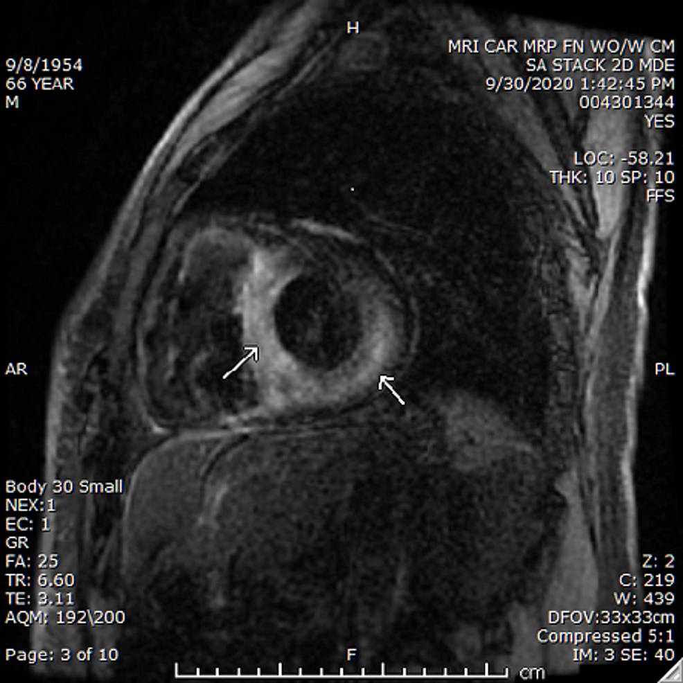 MRI-of-the-heart-with-delayed-gadolinium-enhancement-showing-an-enlarged-heart-with-transmural-delayed-enhancement-of-the-septal-and-lateral-walls-of-the-left-ventricle;-additional-patchy-subendocardial-and-mid-myocardial-delayed-enhancement-is-also-seen-involving-the-anterolateral-wall.