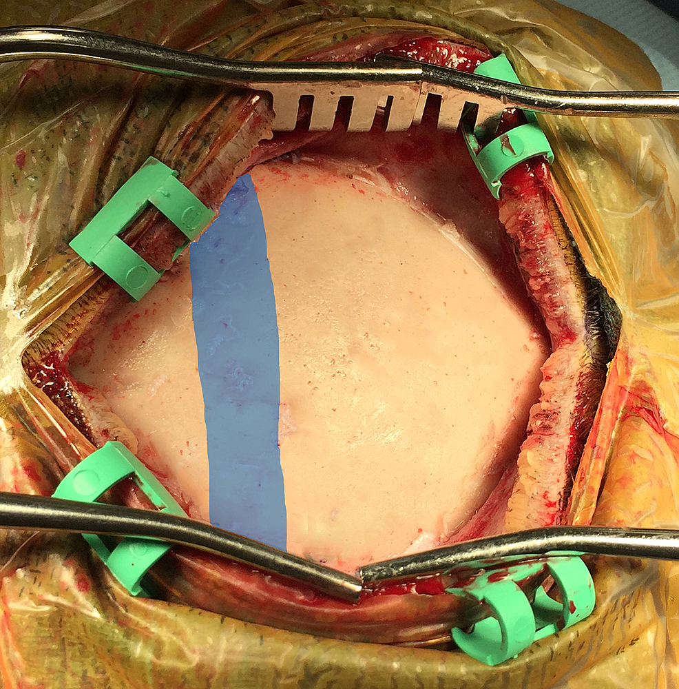 Exposure-of-the-calvaria-overlying-the-sagittal-sinus.