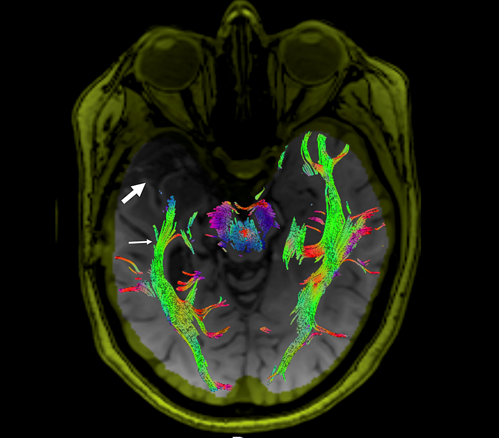 Diffuser-tensor-imaging-and-tractography-of-the-optic-radiations-in-a-case-of-unilateral-mesial-temporal-sclerosis-(MTS)-following-resection-of-the-right-anterior-temporal-lobe.
