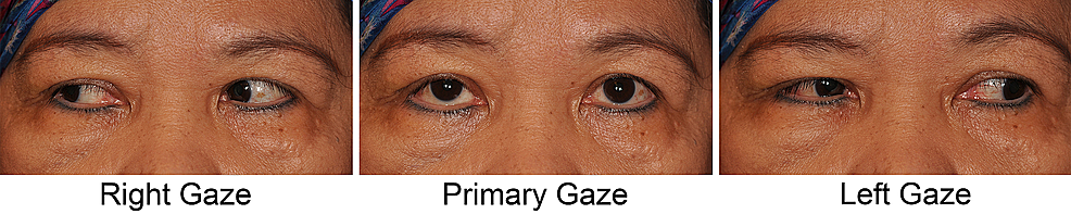 Case-1-after-surgical-revision-for-restrictive-strabismus-via-orbitotomy