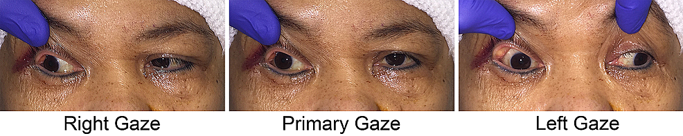 Case-1-with-restrictive-strabismus-after-frontotemporal-orbitozygomatic-craniotomy-for-a-right-sphenoid-wing-meningioma
