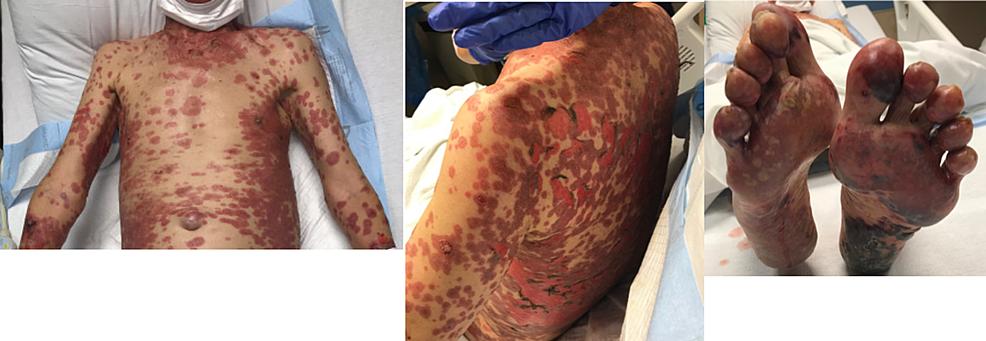 Initial-presentation-of-nivolumab-induced-toxic-epidermal-necrolysis.
