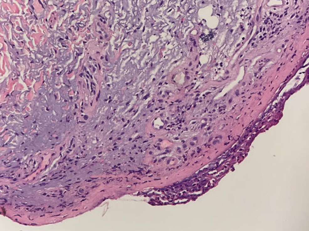 Skin-biopsy-showing-epidermis-with-dyskeratotic-cells-with-focal-full-thickness-necrosis-of-the-roof-and-superficial-dermis-with-sparse-lymphocytic-infiltrate-and-scattered-erythrocytes-(H&E-stain).