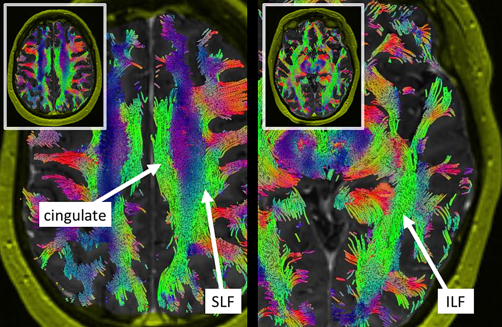 Axial-views-of-the-long-tracts-bordering-the-tumor:-cingulate,-superior-longitudinal-fasciculus-(SLF),-and-inferior-longitudinal-fasciculus-(ILF).-The-SLF-makes-a-superior-parietal-approach-difficult.