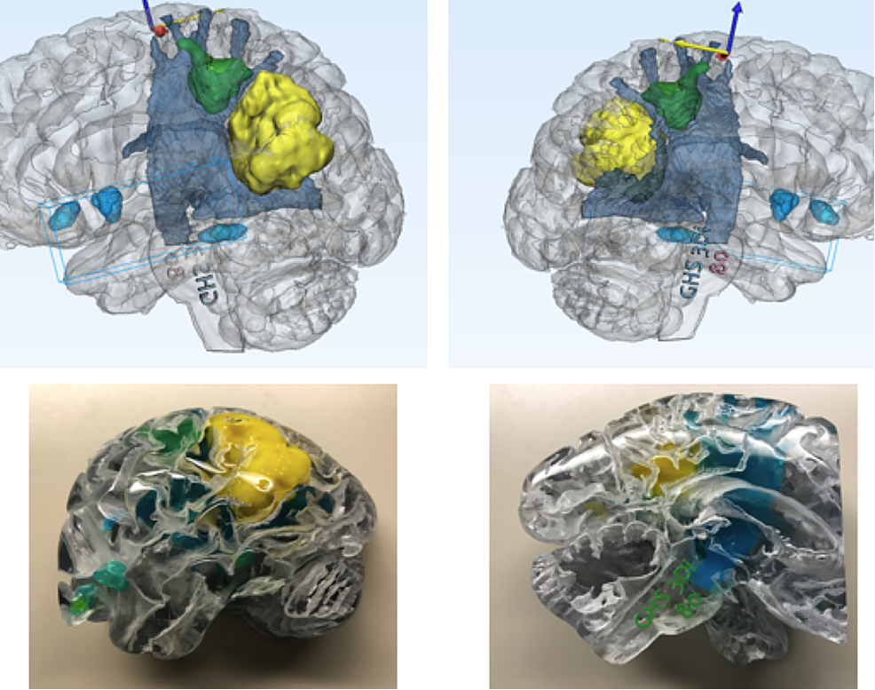 MMTS-protocols-and-semi-automated-tractography-techniques