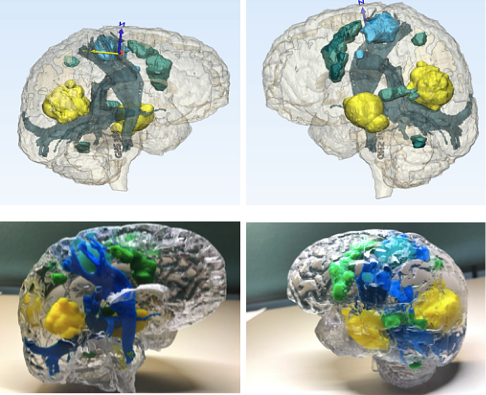 MMTS-protocols-and-tractography