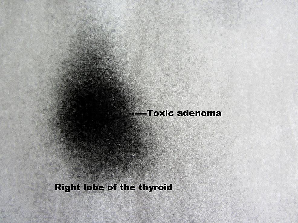 Nuclear-scan-of-thyroid-gland.