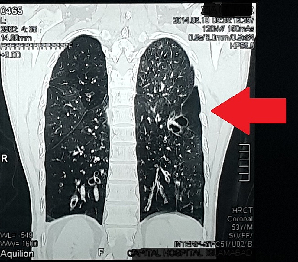Computed-tomography-scan-showing-bronchiectasis