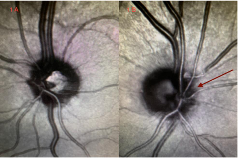 Funduscopic-eye-examination.-(A)-Left-eye:-normal-optic-disc.-(B)-Right-eye:-nasal-optic-disc-pallor-(red-arrow).