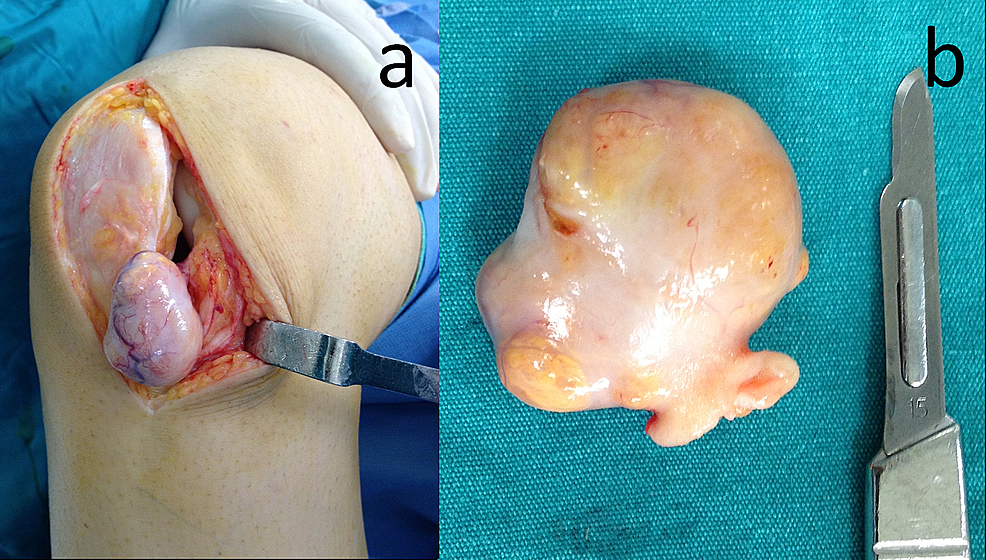Intraoperative-appearance-of-the-lesion.-