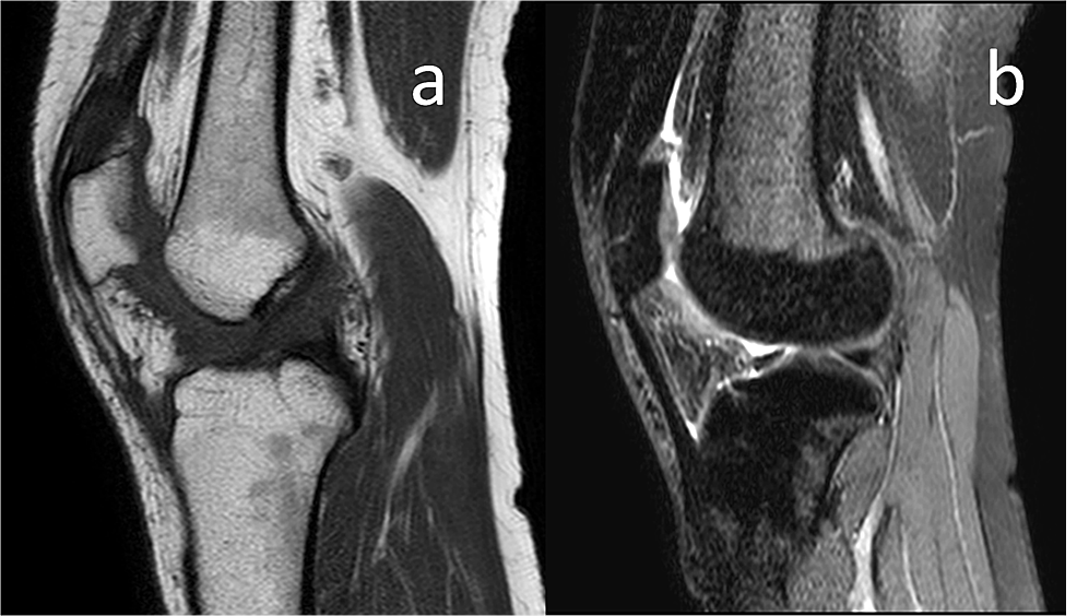 Final-control-MRI-examination-of-the-patient-shows-no-signs-of-recurrence.-