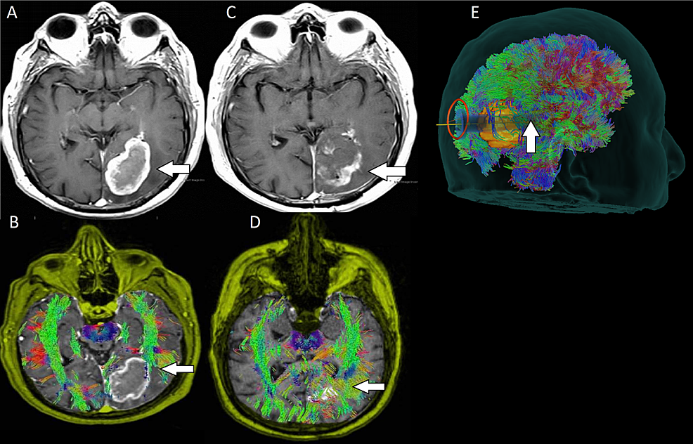 Preoperative-and-postoperative-images-for-patient-five-with-an-occipital-glioblastoma-multiforme-(GBM)
