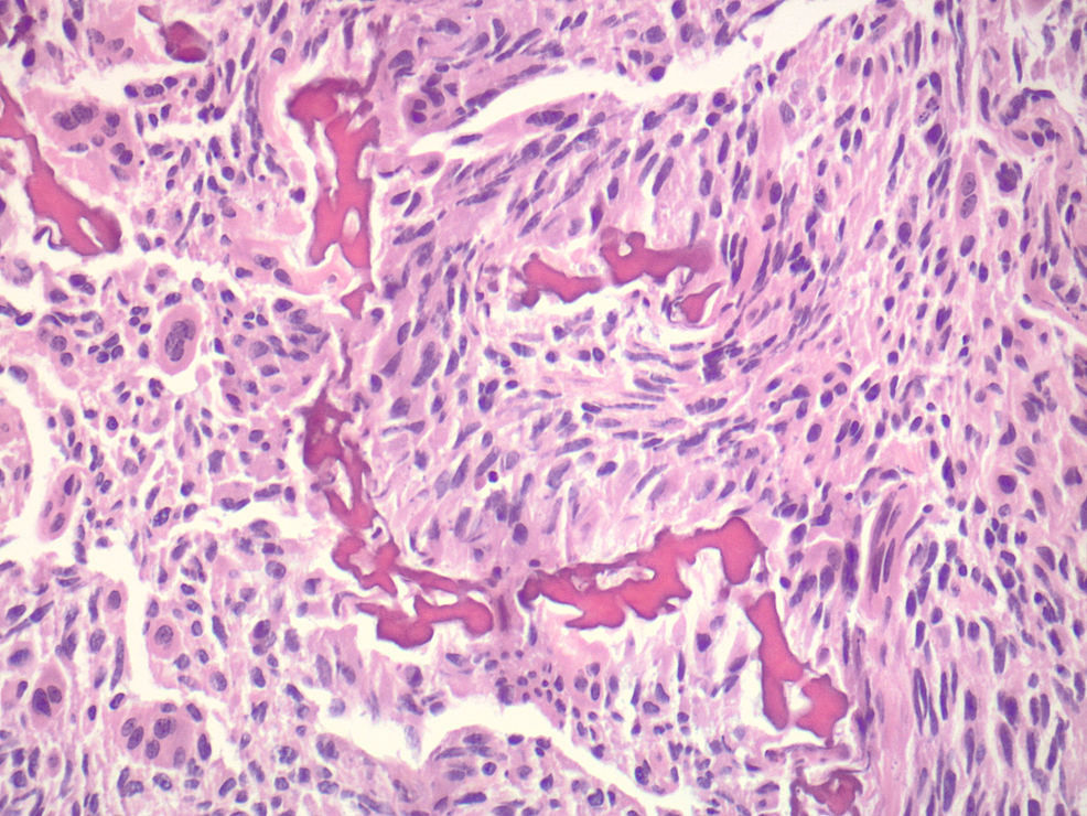 Higher-power-view-of-irregular-osteoid-within-atypical-cells,-with-associated-osteoclast-like-giant-cells-(H-and-E,-original-magnification-200X)