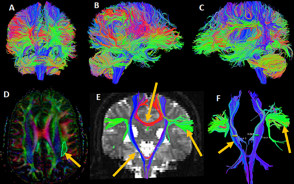Whole-brain-tractography