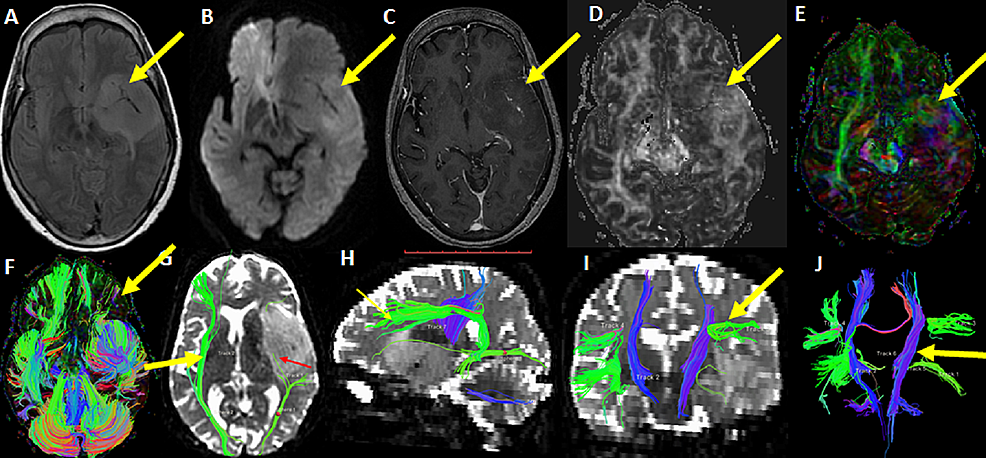 A-34-year-old-female-with-left-insular-low-grade-glioma