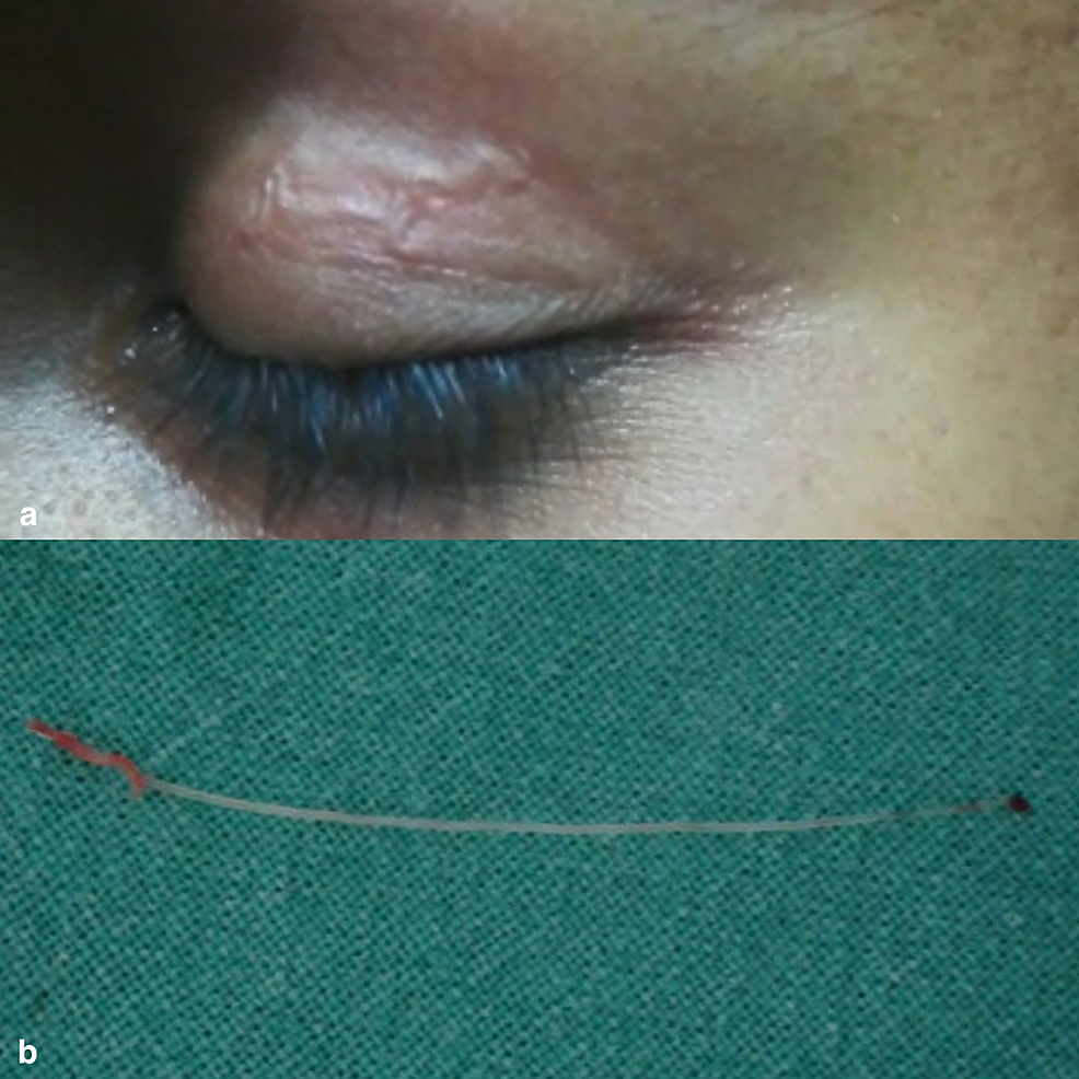 (a)-Clinical-picture-showing-a-vermiform-swelling-in-the-upper-lid.-(b)-Clinical-picture-of-the-surgically-removed-nematode.