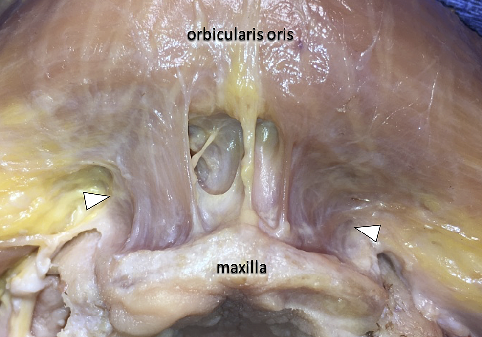 Bilateral-muscle-fibers-(arrowheads),-which-originate-from-the-maxillary-bone-vertically-towards-the-orbicularis-oris.