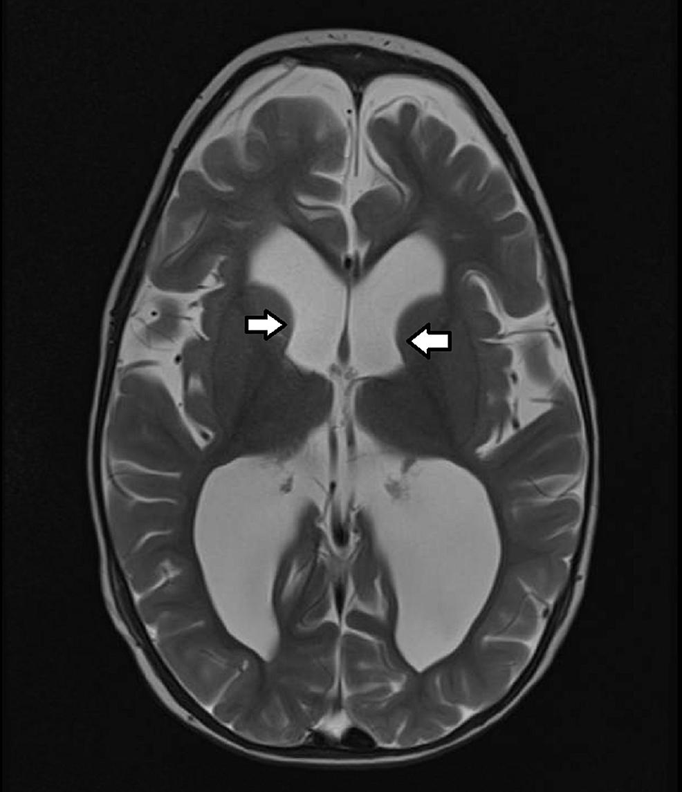 MRI-prior-to-ETV/CPC