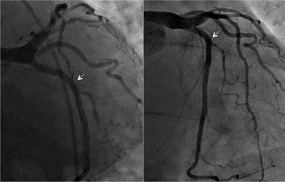 Preoperative-coronary-angiography-showing-no-obstructive-disease-in-the-left-circumflex-coronary-artery