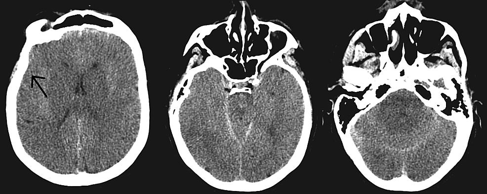 Postoperative-day-zero-computed-tomography-of-the-head