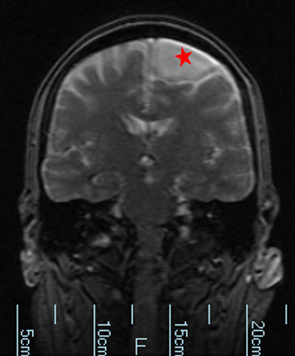 Magnetic-resonance-imaging-without-contrast-and-diffusion-imaging-shows-no-hyperacute,-acute-or-early-subacute-infarction.-No-abnormal-parenchymal-or-leptomeningeal-enhancement.-