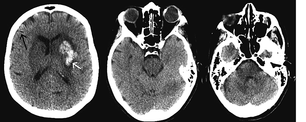 Computed-tomography-of-the-head-done-on-postoperative-day-8