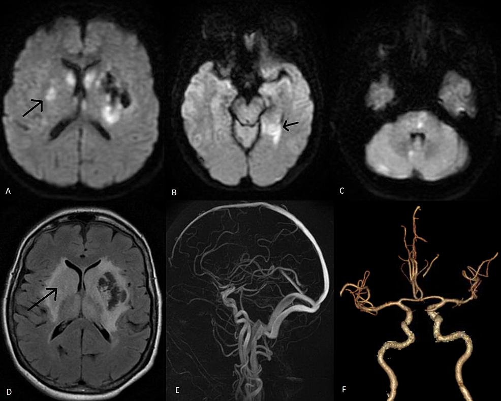 Magnetic-resonance-imaging-brain-and-vascular-studies-done-on-postoperative-day-5