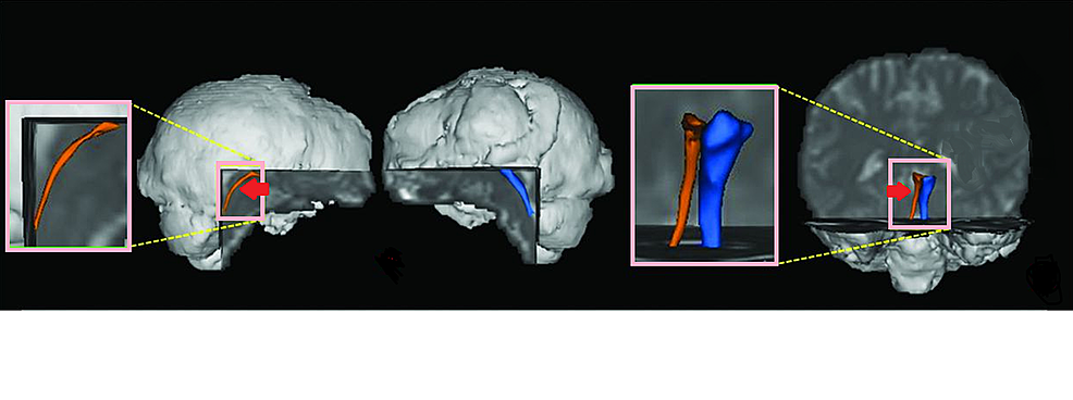Diffusion-tensor-tractography-showing-thinning-of-the-left-lower-reticular-activating-system