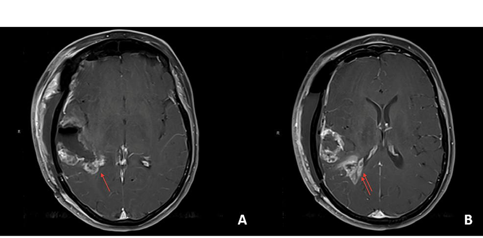 Postoperative-magnetic-resonance-imaging-(MRI)