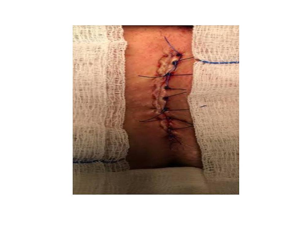 Karydakis-flap-procedure-in-the-treatment-of-pilonidal-sinus-disease.