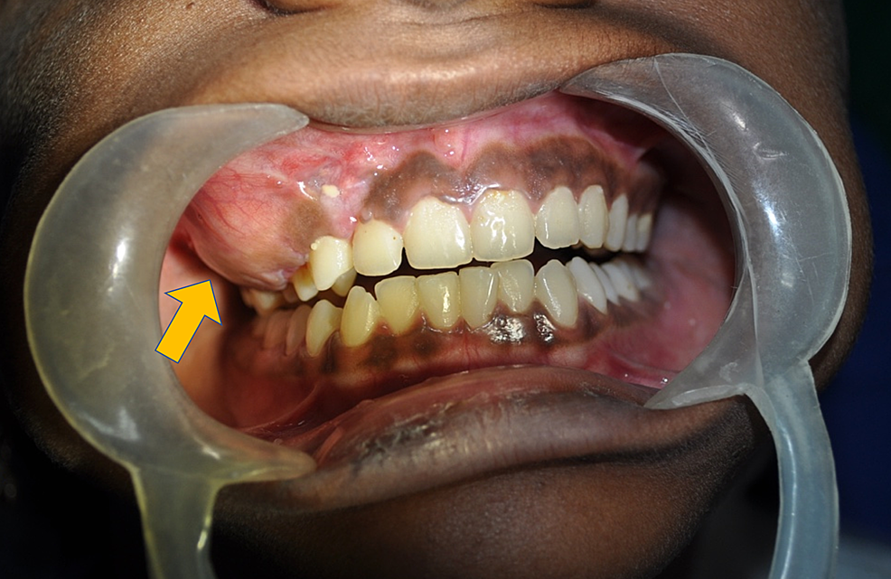 Intraoral-view-showing-the-swelling-obliterating-the-upper-right-buccal-vestibule-from-maxillary-canine-to-the-second-molar-(denoted-by-the-yellow-arrow).