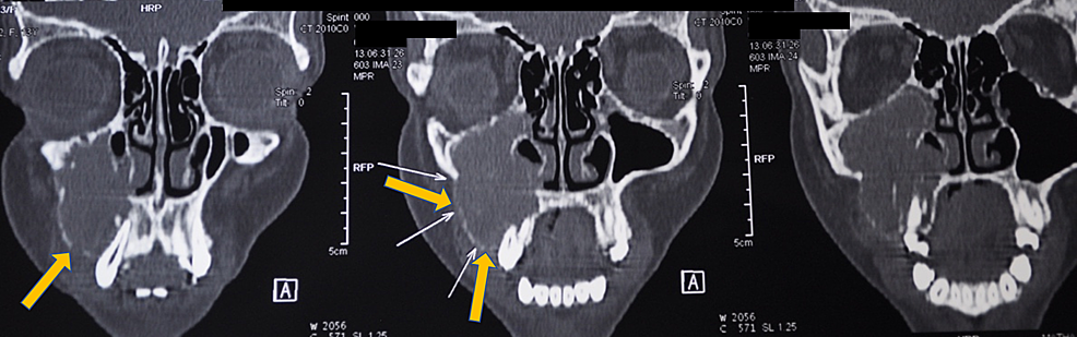 Computed-tomography-coronal-section-shows-obliteration-of-the-right-maxillary-sinus-and-superoinferior-extension-of-the-lesion-(denoted-by-the-yellow-arrows).