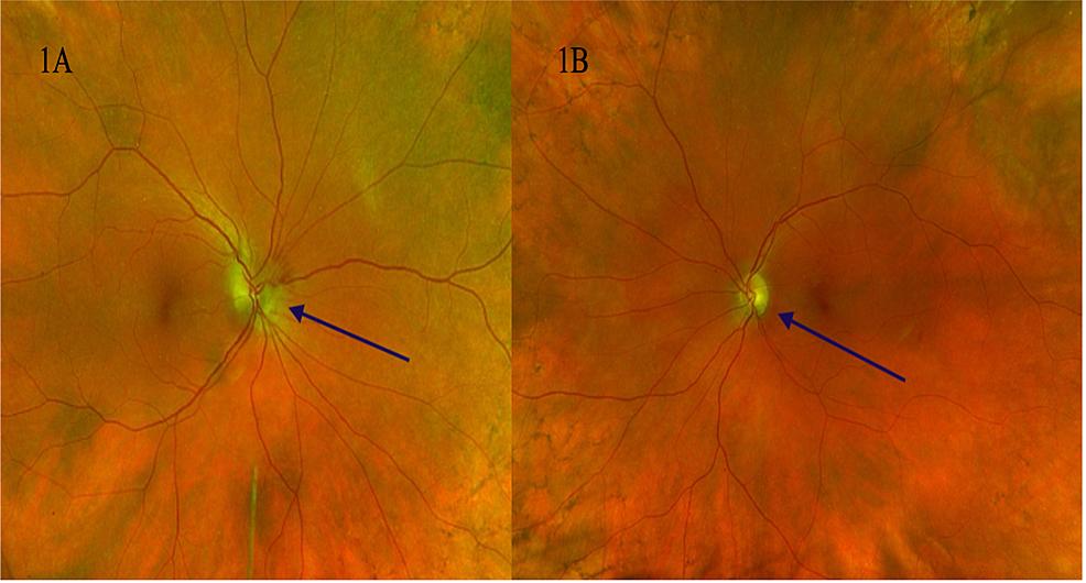 1A:-Left-eye-fundus,-optic-disc-edema-(blue-arrow).-1B:-Right-eye-fundus,-optic-disc-edema-(blue-arrow)