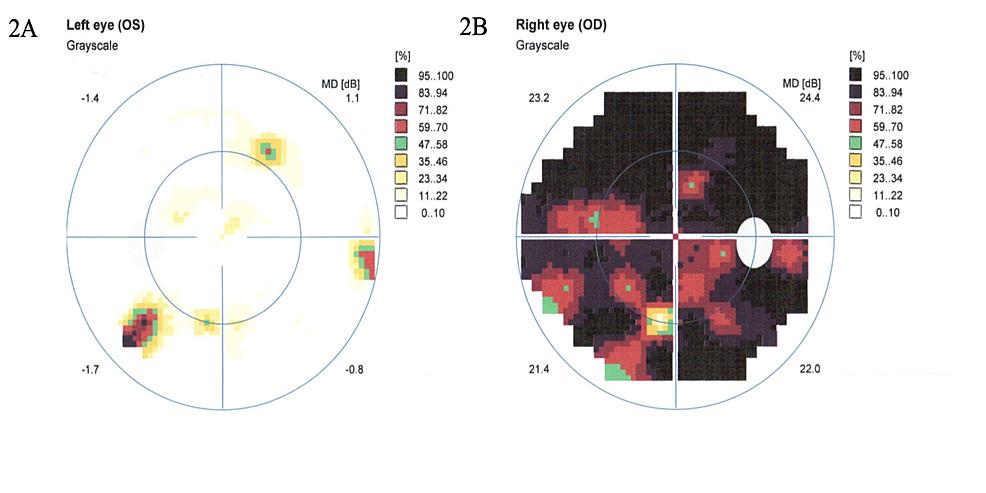 2A:-Left-eye-Humphrey-visual-field-testing-showing-constricted-visual-field.-2B:-Right-eye-Humphrey-visual-field-testing-showing-near-blackout-of-vision.-Decibel-(dB).